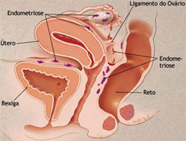 Classificações de endometriose